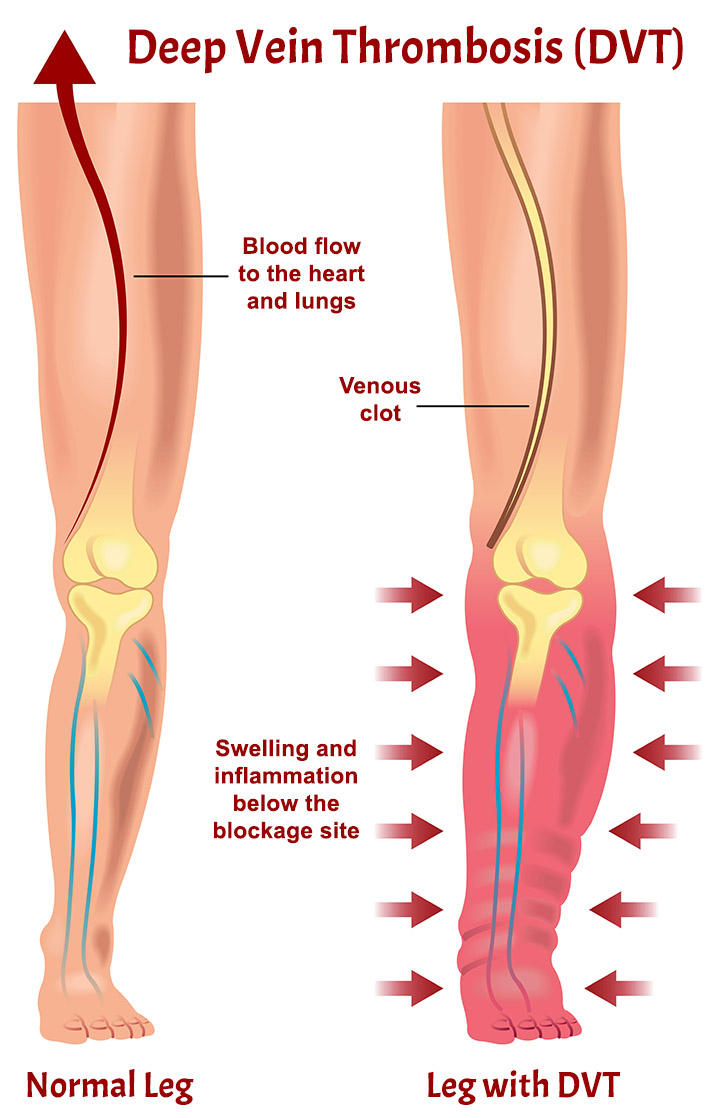 Treatment of deep vein thrombophlebitis should be started as early as possible